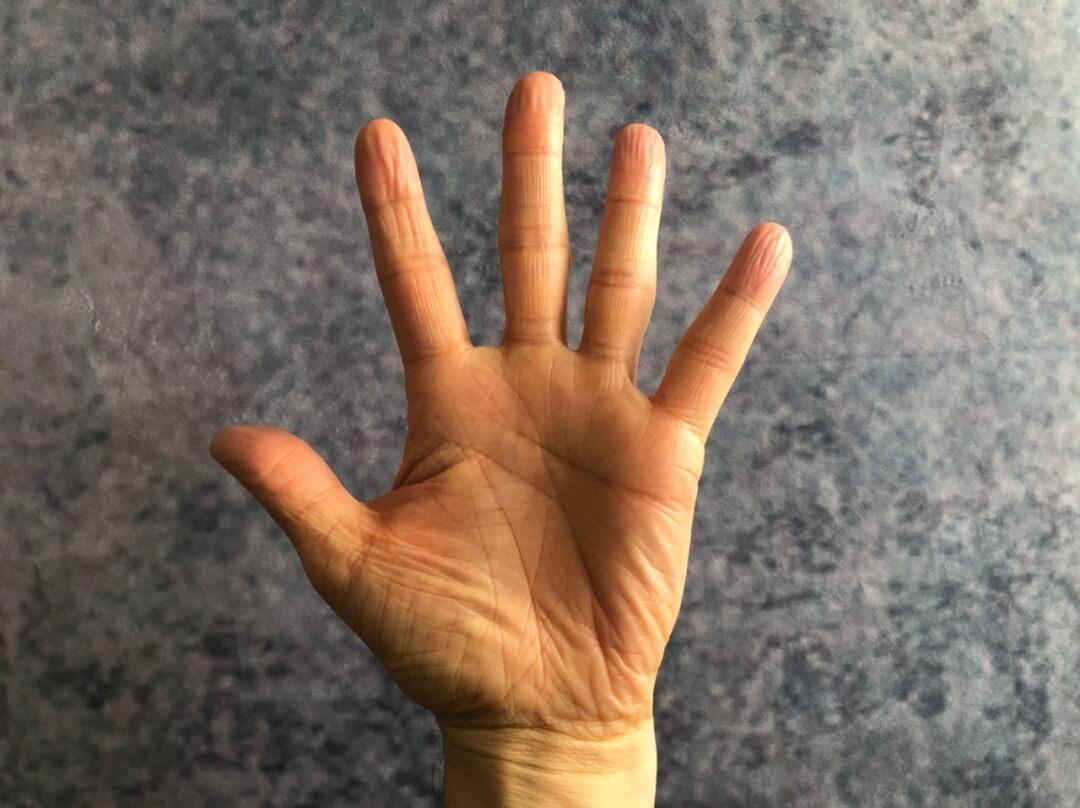 5-Finger-Redestruktur